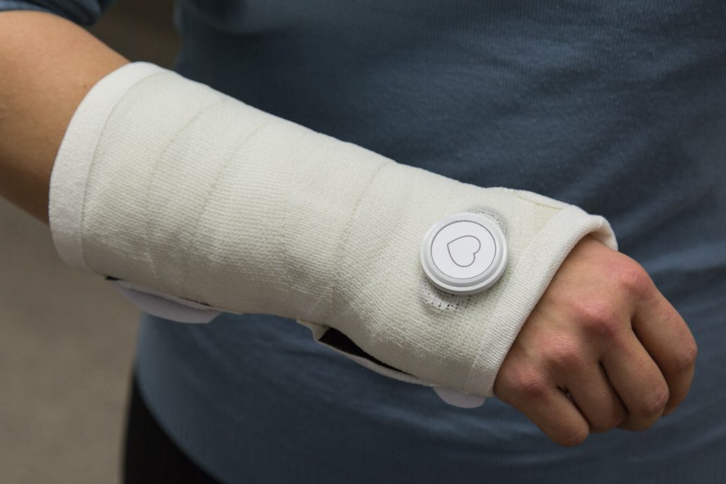 Wrist cast with a motion sensor attached to the cast.